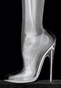 TALONS HAUTS, maux de dos et pieds estropiés...